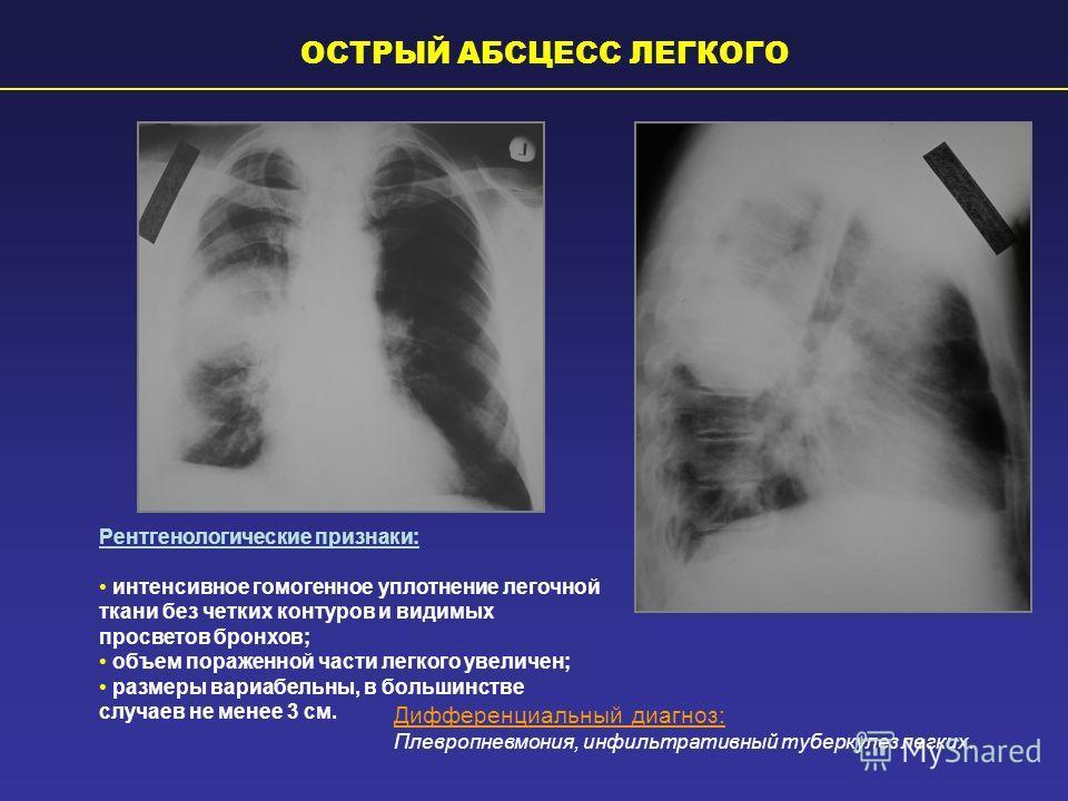 Рентгенологические признаки: интенсивное гомогенное уплотнение легочной ткани без четких контуров и видимых просветов бронхов; объем пораженной части легкого увеличен; размеры вариабельны, в большинстве случаев не менее 3 см. Дифференциальный диагноз
