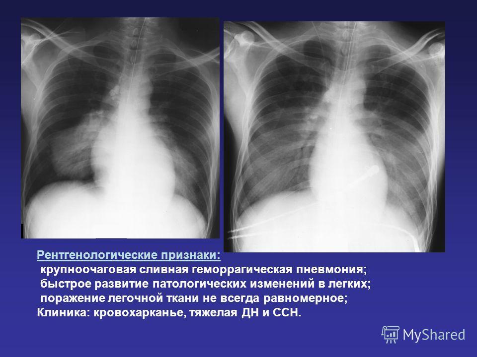 Рентгенологические признаки: крупноочаговая сливная геморрагическая пневмония; быстрое развитие патологических изменений в легких; поражение легочной ткани не всегда равномерное; Клиника: кровохарканье, тяжелая ДН и ССН.