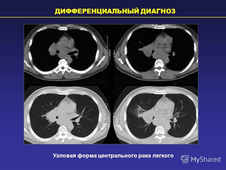 Узловая форма центрального рака легкого