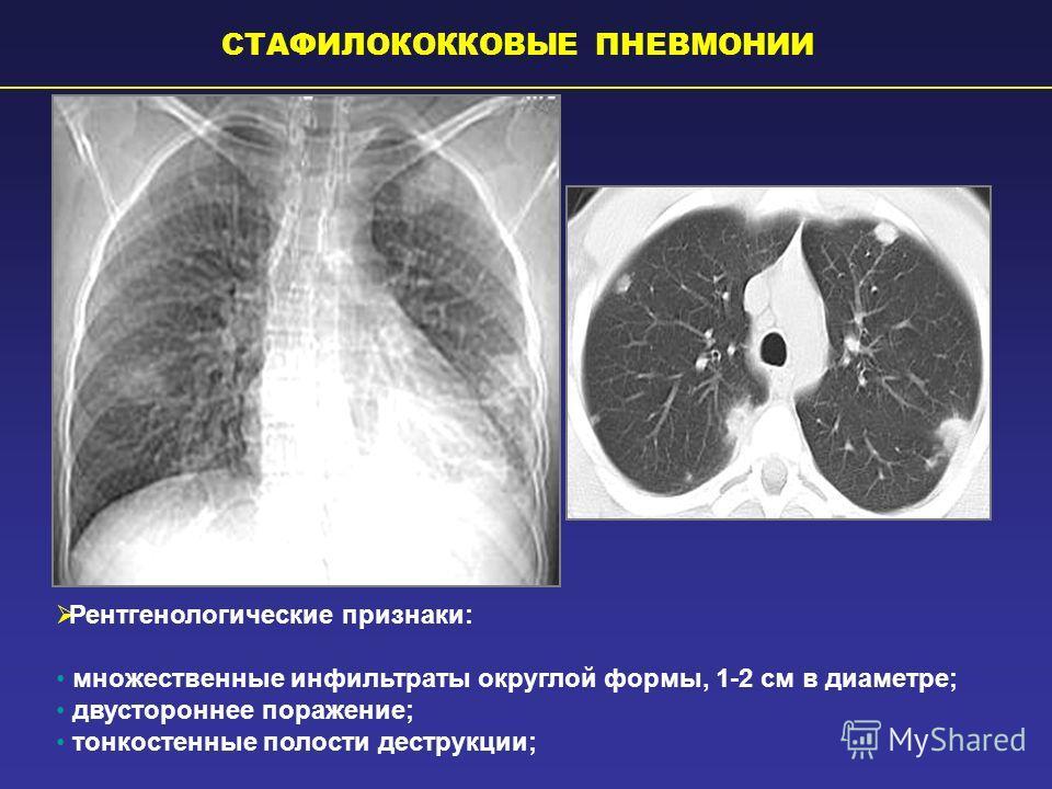 СТАФИЛОКОККОВЫЕ ПНЕВМОНИИ Рентгенологические признаки: множественные инфильтраты округлой формы, 1-2 см в диаметре; двустороннее поражение; тонкостенные полости деструкции;