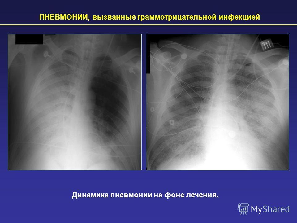 ПНЕВМОНИИ, вызванные грамотрицательной инфекцией Динамика пневмонии на фоне лечения.