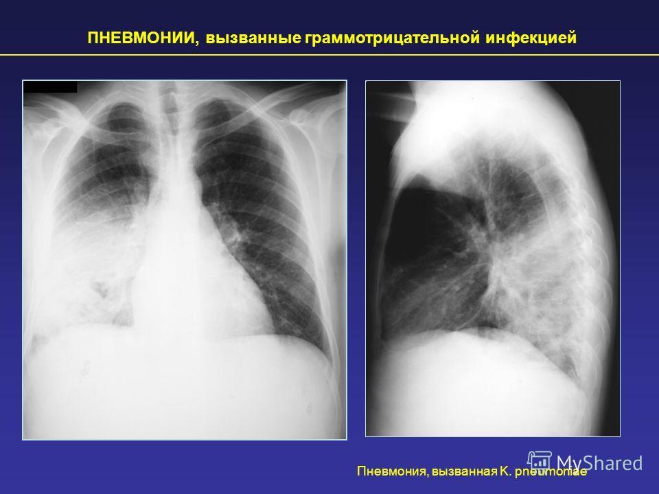 ПНЕВМОНИИ, вызванные грамотрицательной инфекцией Пневмония, вызванная K. pneumoniae