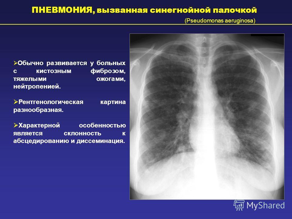 ПНЕВМОНИЯ, вызванная синегнойной палочкой (Pseudomonas aeruginosa) Обычно развивается у больных с кистозным фиброзом, тяжелыми ожогами, нейтропенией. Рентгенологическая картина разнообразная. Характерной особенностью является склонность к абсцедирова
