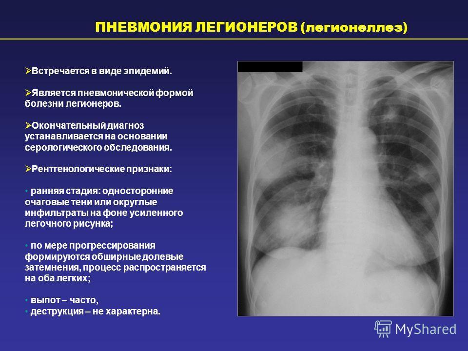 ПНЕВМОНИЯ ЛЕГИОНЕРОВ (легионеллез) Встречается в виде эпидемий. Является пневмонической формой болезни легионеров. Окончательный диагноз устанавливается на основании серологического обследования. Рентгенологические признаки: ранняя стадия: односторон