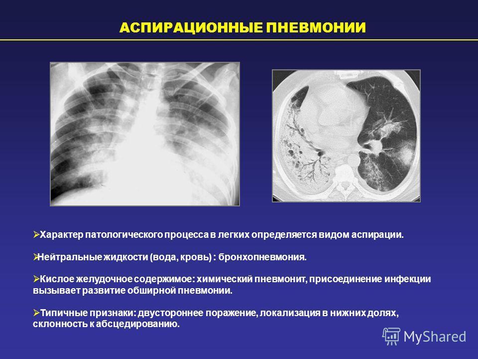 АСПИРАЦИОННЫЕ ПНЕВМОНИИ Характер патологического процесса в легких определяется видом аспирации. Нейтральные жидкости (вода, кровь) : бронхопневмония. Кислое желудочное содержимое: химический пневмонит, присоединение инфекции вызывает развитие обширн