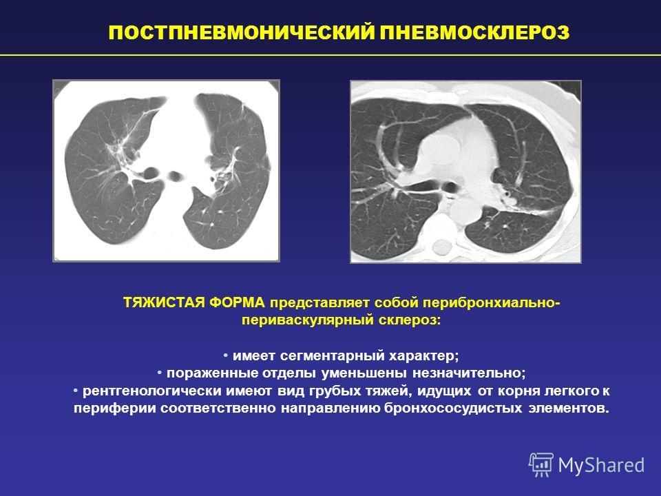 ПОСТПНЕВМОНИЧЕСКИЙ ПНЕВМОСКЛЕРОЗ ТЯЖИСТАЯ ФОРМА представляет собой перибронхиально- периваскулярный склероз: имеет сегментарный характер; пораженные отделы уменьшены незначительно; рентгенологически имеют вид грубых тяжей, идущих от корня легкого к п