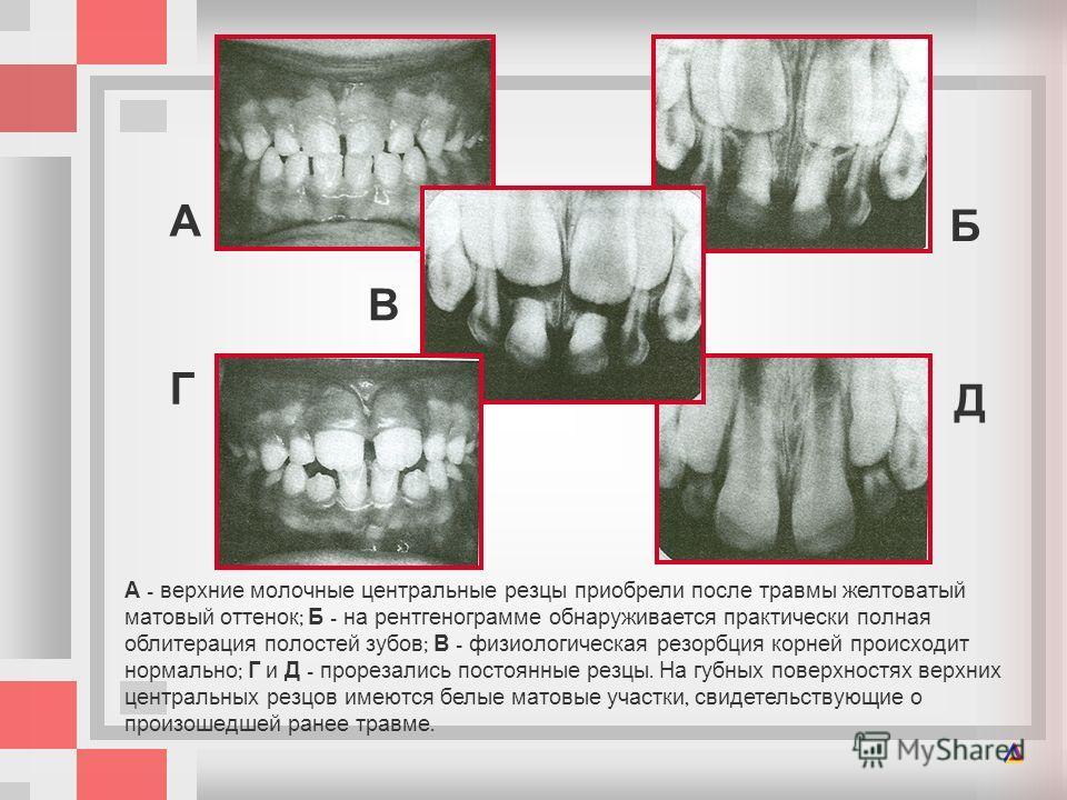 А верхние молочные центральные резцы приобрели после травмы желтоватый матовый оттенок ; Б на рентгенограмме обнаруживается практически полная облитерация полостей зубов ; В физиологическая резорбция корней происходит нормально ; Г и Д прорезались по