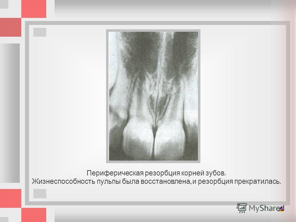 Периферическая резорбция корней зубов. Жизнеспособность пульпы была восстановлена, и резорбция прекратилась.