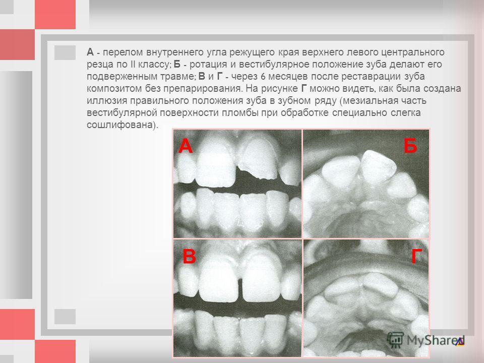 А - перелом внутреннего угла режущего края верхнего левого центрального резца по II классу ; Б - ротация и вестибулярное положение зуба делают его подверженным травме ; В и Г - через 6 месяцев после реставрации зуба композитом без препарирования. На