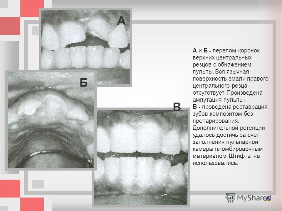 А и Б - перелом коронок верхних центральных резцов с обнажением пульпы. Вся язычная поверхность эмали правого центрального резца отсутствует. Произведена ампутация пульпы ; В - проведена реставрация зубов композитом без препарирования. Дополнительной