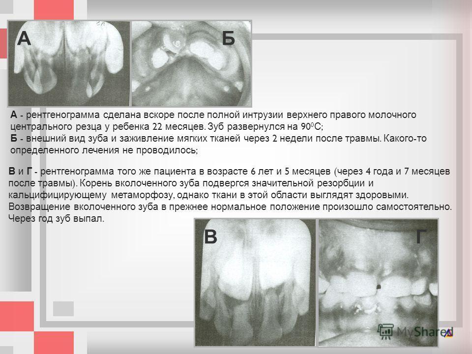 В и Г - рентгенограмма того же пациента в возрасте 6 лет и 5 месяцев ( через 4 года и 7 месяцев после травмы ). Корень вколоченного зуба под  вергся значительной резорбции и кальцифицирующему метаморфозу, однако ткани в этой области выглядят здоровы