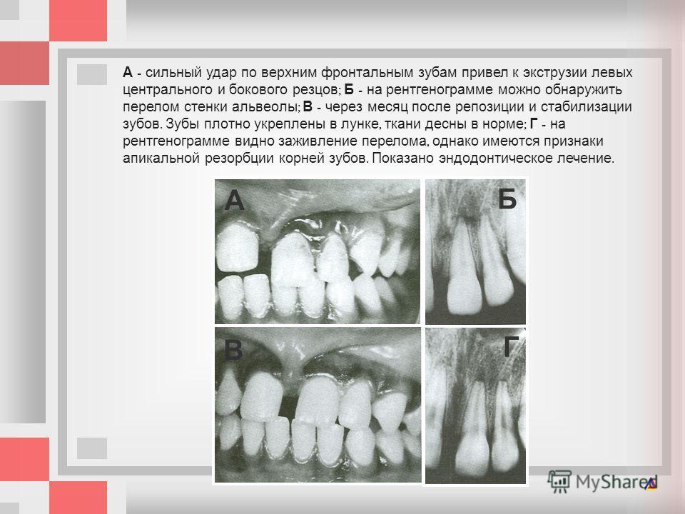 А - сильный удар по верхним фронтальным зубам привел к экструзии левых центрального и бокового резцов ; Б - на рентгенограмме можно обнаружить перелом стенки альвеолы ; В - через месяц после репозиции и стабилизации зубов. Зубы плотно укреплены в лун
