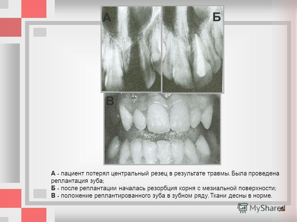 А - пациент потерял центральный резец в результате травмы. Была проведена реплантация зуба ; Б - после реплантации началась резорбция корня с мезиальной поверхности ; В - положение реплантированного зуба в зубном ряду. Ткани десны в норме. А Б В