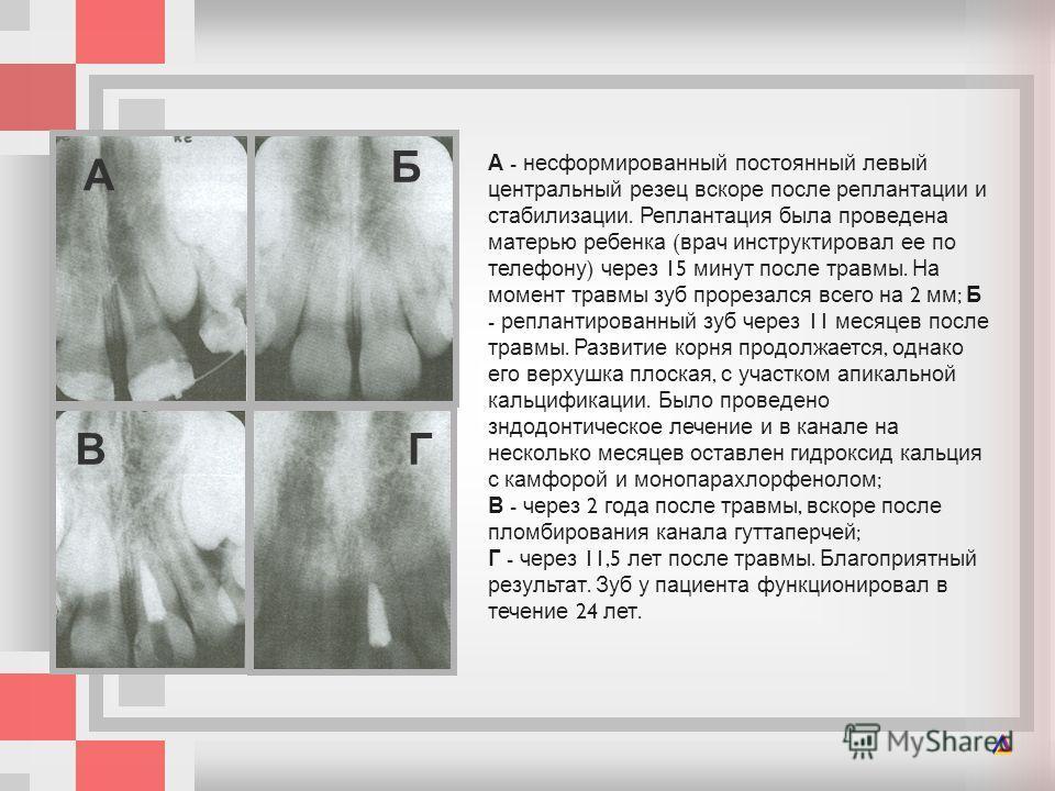 А - несформированный постоянный левый центральный резец вскоре после реплантации и стабилизации. Реплантация была проведена матерью ребенка ( врач инструктировал ее по телефону ) через 15 минут после травмы. На момент травмы зуб проре  зался всего н