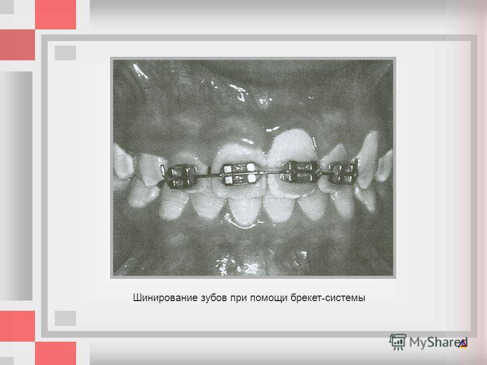 Шинирование зубов при помощи брекет - системы