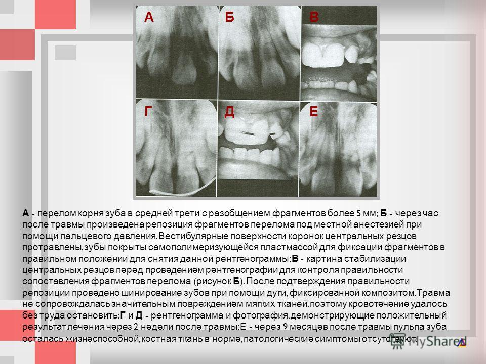 А - перелом корня зуба в средней трети с разобщением фрагментов более 5 мм ; Б - через час после травмы произведена репозиция фрагментов перелома под местной анестезией при помощи пальцевого давления. Вестибулярные поверхности коронок центральных рез