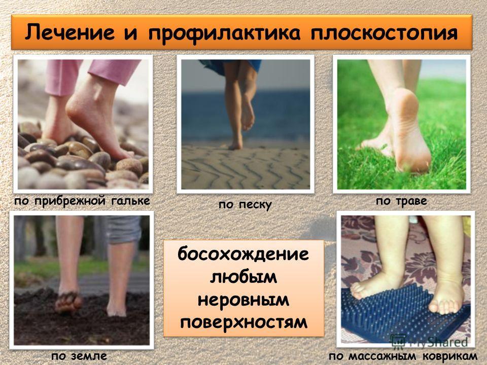 Лечение и профилактика плоскостопия по прибрежной гальке по песку по земле по массажным коврикам по траве босохождение любым неровным поверхностям