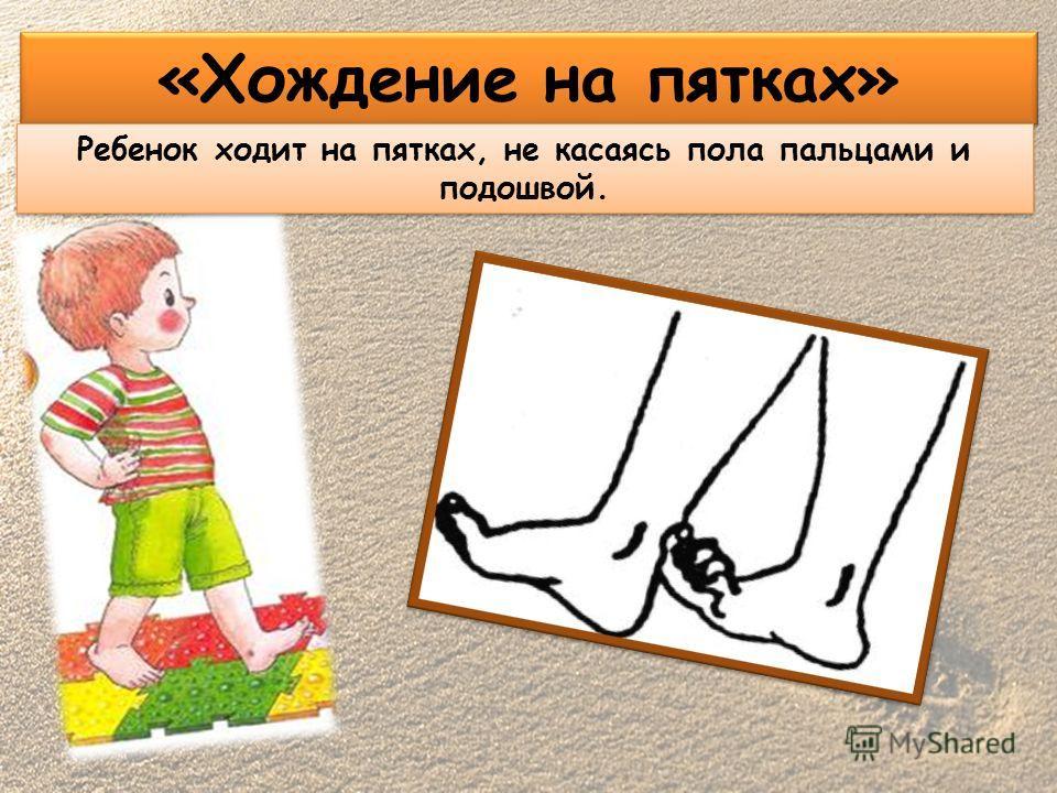 «Хождение на пятках» Ребенок ходит на пятках, не касаясь пола пальцами и подошвой.
