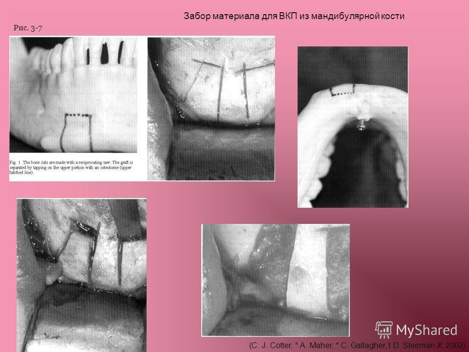 Забор материала для ВКП из мандибулярной кости (C. J. Cotter, * A. Maher, * C. Gallagher, t D. Sleeman X, 2002) Рис. 3-7