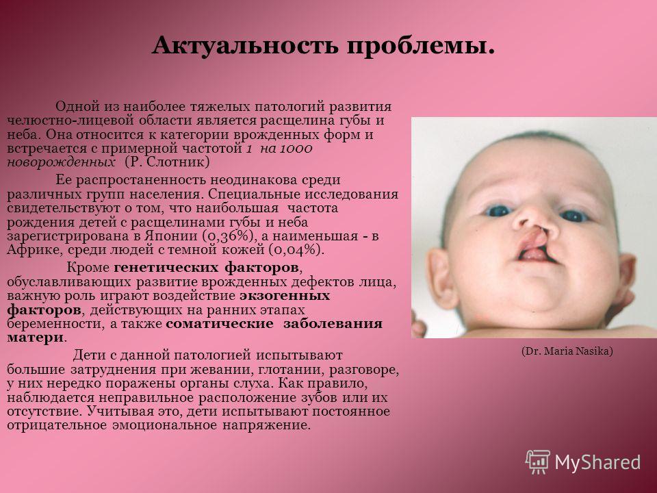 Актуальность проблемы. Одной из наиболее тяжелых патологий развития челюстно-лицевой области является расщелина губы и неба. Она относится к категории врожденных форм и встречается с примерной частотой 1 на 1000 новорожденных (Р. Слотник) Ее распрост
