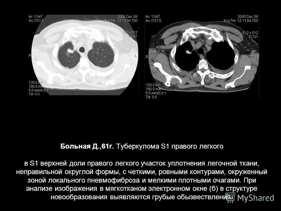 Больная Д.,61 г. Туберкулома S1 правого легкого в S1 верхней доли правого легкого участок уплотнения легочной ткани, неправильной округлой формы, с четкими, ровными контурами, окруженный зоной локального пневмофиброза и мелкими плотными очагами. При