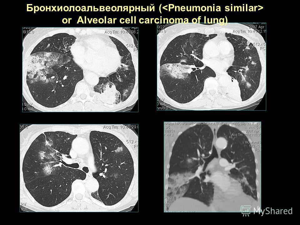 Бронхиолоальвеолярный ( or Alveolar cell carcinoma of lung)