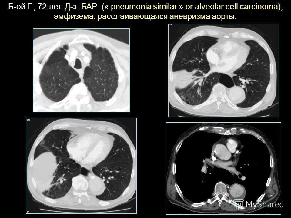 Б-ой Г., 72 лет. Д-з: БАР (« pneumonia similar » or alveolar cell carcinoma), эмфизема, расслаивающаяся аневризма аорты.