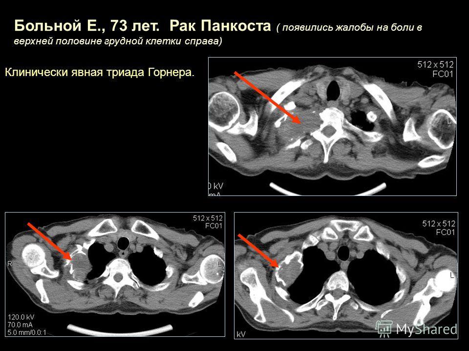Больной Е., 73 лет. Рак Панкоста ( появились жалобы на боли в верхней половине грудной клетки справа) Клинически явная триада Горнера.