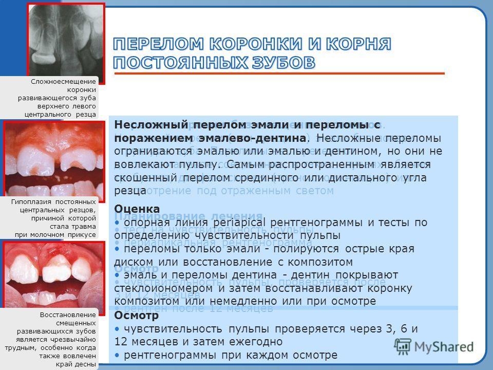 Пробный текст Гипоплазия постоянных центральных резцов, причиной которой стала травма при молочном прикусе Сложноесмещение коронки развивающегося зуба верхнего левого центрального резца Восстановление смещенных развивающихся зубов является чрезвычайн