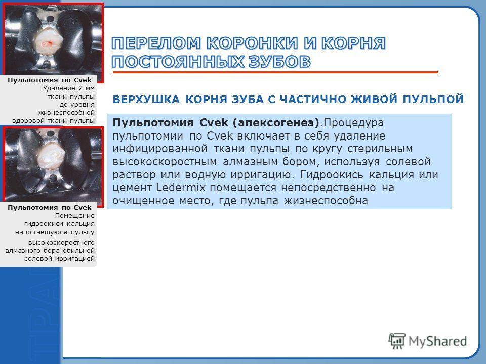 Пробный текст ВЕРХУШКА КОРНЯ ЗУБА С ЧАСТИЧНО ЖИВОЙ ПУЛЬПОЙ Пульпотомия Cvek (апексогенез).Процедура пульпотомии по Cvek включает в себя удаление инфицированной ткани пульпы по кругу стерильным высокоскоростным алмазным бором, используя солевой раство