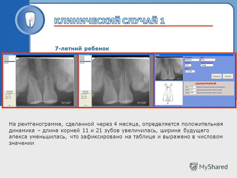 Пробный текст 7-летний ребенок На рентгенограмме, сделанной через 4 месяца, определяется положительная динамика – длина корней 11 и 21 зубов увеличилась, ширина будущего апекса уменьшилась, что зафиксировано на таблице и выражено в числовом значении