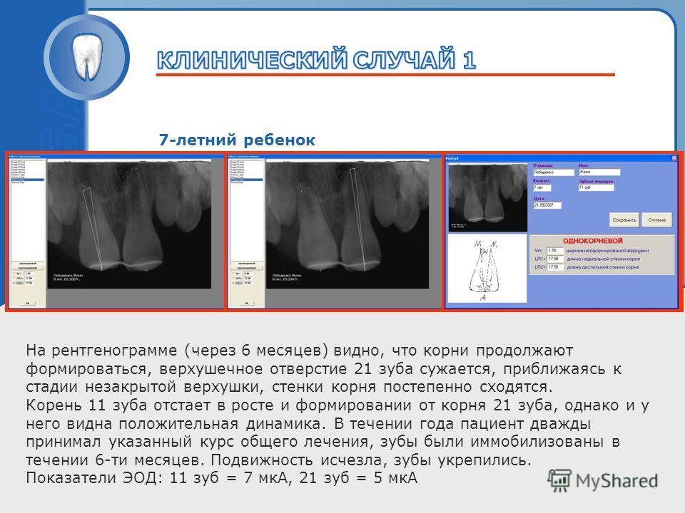 Пробный текст 7-летний ребенок На рентгенограмме (через 6 месяцев) видно, что корни продолжают формироваться, верхушечное отверстие 21 зуба сужается, приближаясь к стадии незакрытой верхушки, стенки корня постепенно сходятся. Корень 11 зуба отстает в