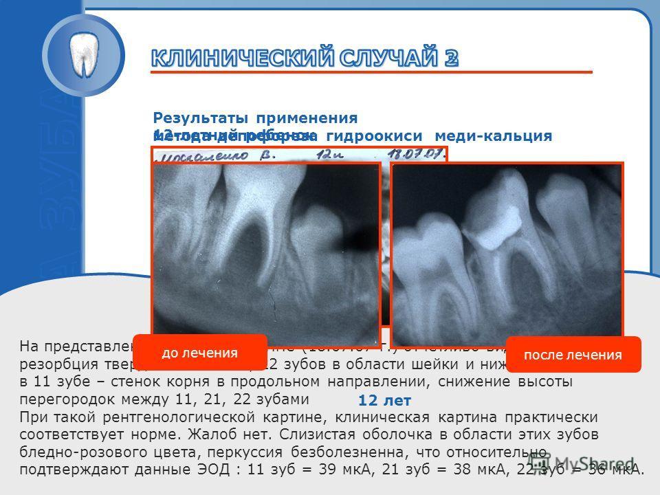 Пробный текст 12-летний ребенок На представленной рентгенограмме (18.07.07 г.) отчетливо видна значительная резорбция твердых тканей 21, 22 зубов в области шейки и нижней 1/3 корня, а в 11 зубе – стенок корня в продольном направлении, снижение высоты