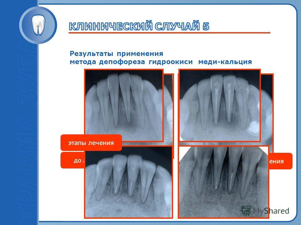 Пробный текст Результаты применения метода депофореза гидроокиси меди-кальция до лечения после лечения этапы лечения