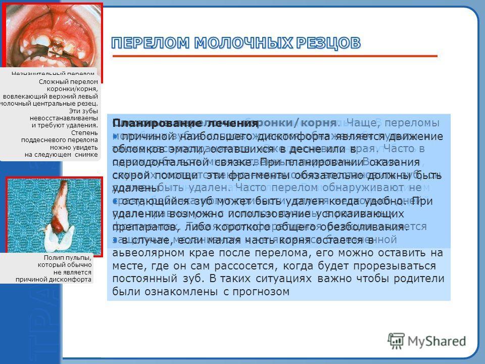 Пробный текст Перелом коронки с обнажением пульпы. В отличие от зубов постоянного прикуса, молочные зубы чаще смещаются при переломе. Эмаль и дентин могут быть отполированы при помощи диска и если это возможно, дентин покрывается стеклоиономерным цем