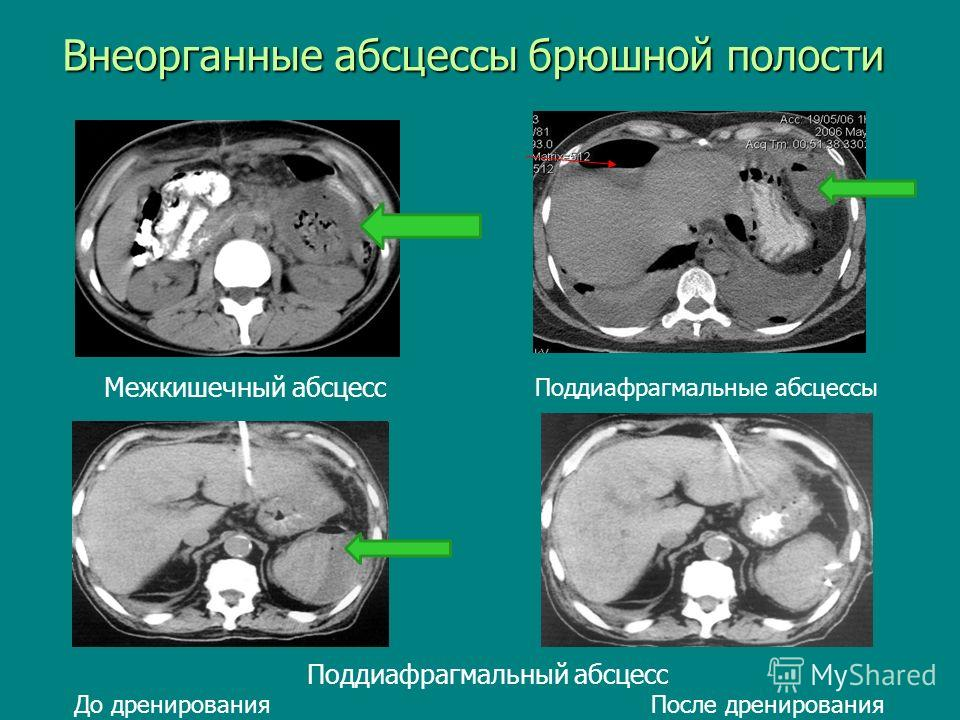 Абсцессы брюшной полости фото