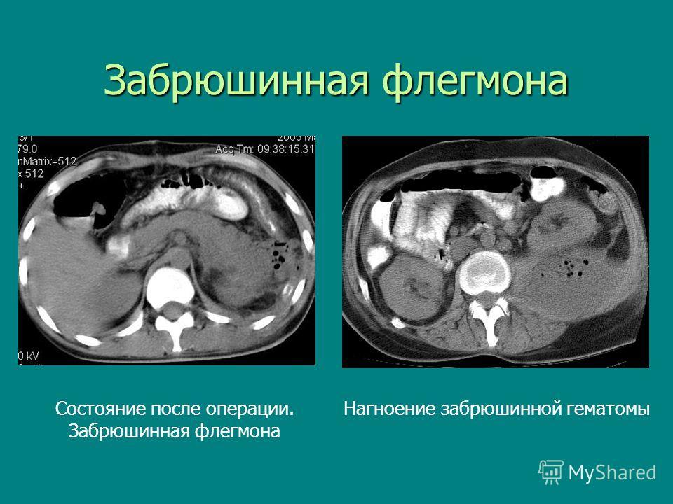 Забрюшинная флегмона Нагноение забрюшинной гематомы Состояние после операции. Забрюшинная флегмона