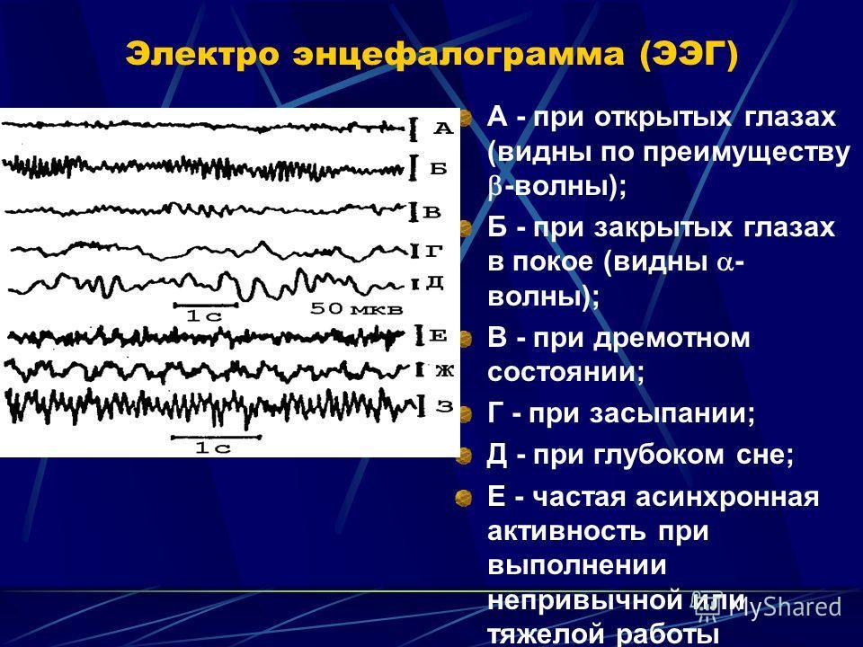 Электро энцефалограмма (ЭЭГ) А - при открытых глазах (видны по преимуществу -волны); Б - при закрытых глазах в покое (видны - волны); В - при дремотном состоянии; Г - при засыпании; Д - при глубоком сне; Е - частая асинхронная активность при выполнен