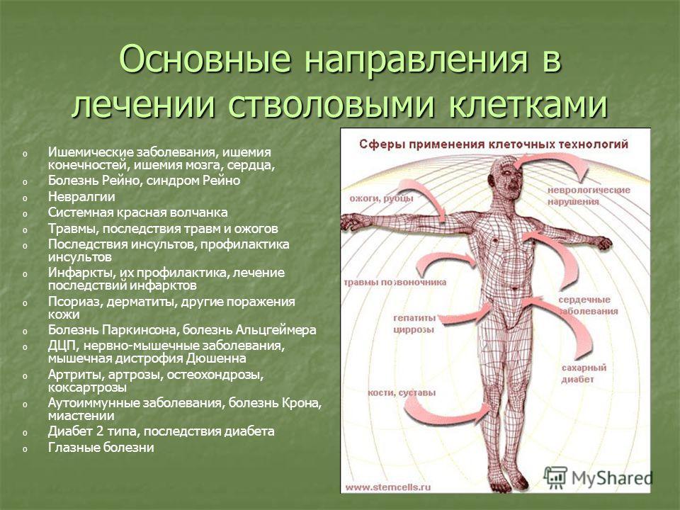 Основные направления в лечении стволовыми клетками o o Ишемические заболевания, ишемия конечностей, ишемия мозга, сердца, o o Болезнь Рейно, синдром Рейно o o Невралгии o o Системная красная волчанка o o Травмы, последствия травм и ожогов o o Последс