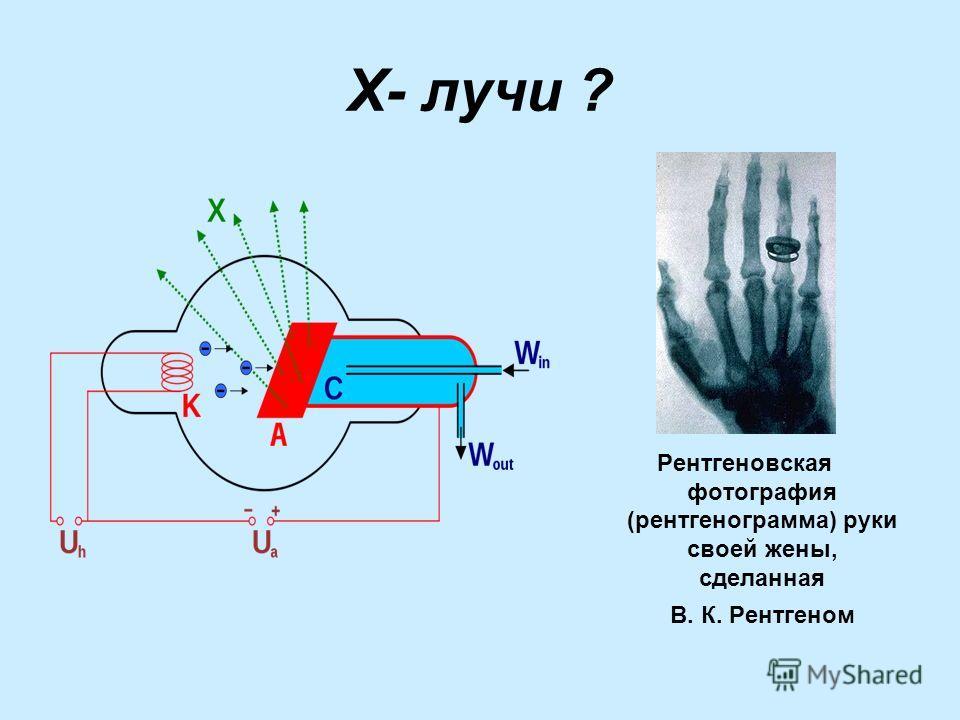 Х- лучи ? Рентгеновская фотография (рентгенограмма) руки своей жены, сделанная В. К. Рентгеном
