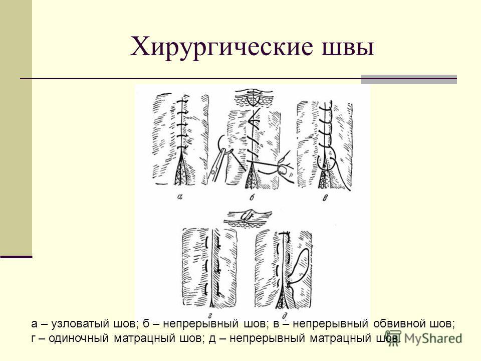 Хирургические швы а – узловатый шов; б – непрерывный шов; в – непрерывный обвивной шов; г – одиночный матрацный шов; д – непрерывный матрацный шов.