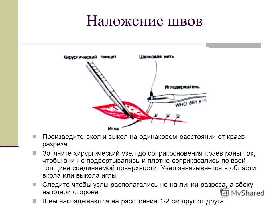Наложение швов Произведите вкол и выкол на одинаковом расстоянии от краев разреза Затяните хирургический узел до соприкосновения краев раны так, чтобы они не подвертывались и плотно соприкасались по всей толщине соединяемой поверхности. Узел завязыва