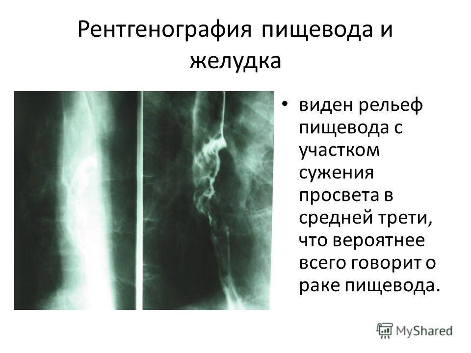 Рентгенография пищевода и желудка виден рельеф пищевода с участком сужения просвета в средней трети, что вероятнее всего говорит о раке пищевода.