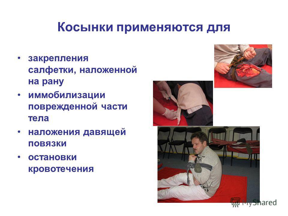 Косынки применяются для закрепления салфетки, наложенной на рану иммобилизации поврежденной части тела наложения давящей повязки остановки кровотечения