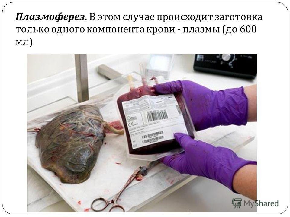 Плазмоферез. В этом случае происходит заготовка только одного компонента крови - плазмы ( до 600 мл )