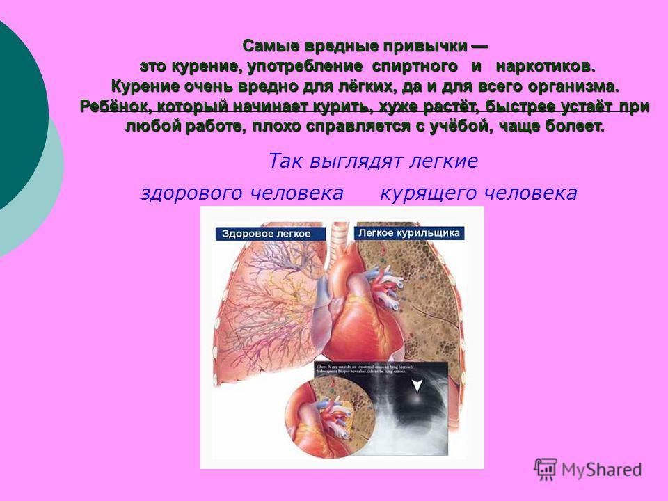 Самые вредные привычки Самые вредные привычки это курение, употребление спиртного и наркотиков. это курение, употребление спиртного и наркотиков. Курение очень вредно для лёгких, да и для всего организма. Ребёнок, который начинает курить, хуже растёт