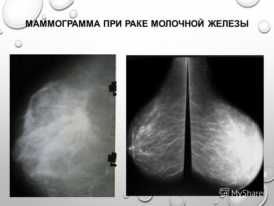 Снимки маммографии при раке молочной железы