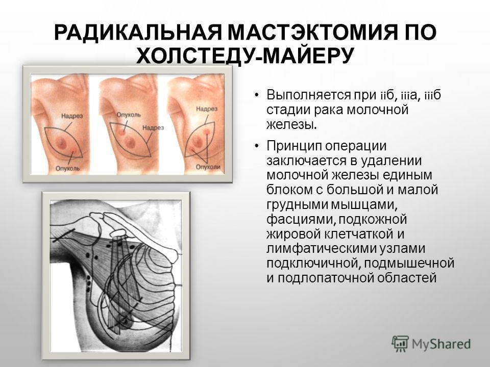 РАДИКАЛЬНАЯ МАСТЭКТОМИЯ ПО ХОЛСТЕДУ - МАЙЕРУ Выполняется при ii б, iii а, iii б стадии рака молочной железы. Принцип операции заключается в удалении молочной железы единым блоком с большой и малой грудными мышцами, фасциями, подкожной жировой клетчат