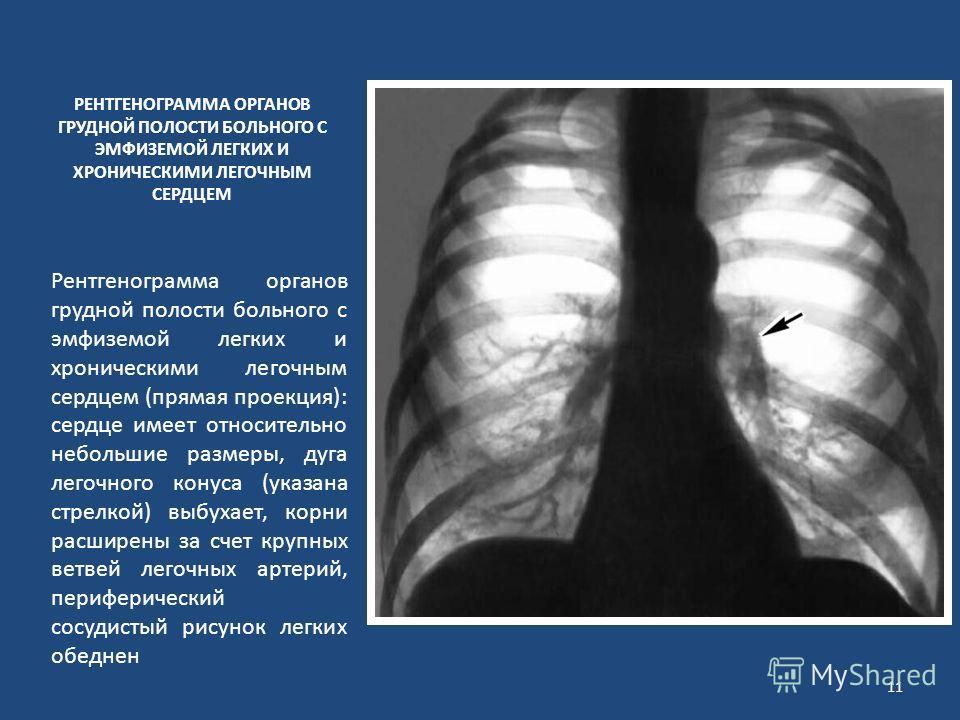 РЕНТГЕНОГРАММА ОРГАНОВ ГРУДНОЙ ПОЛОСТИ БОЛЬНОГО С ЭМФИЗЕМОЙ ЛЕГКИХ И ХРОНИЧЕСКИМИ ЛЕГОЧНЫМ СЕРДЦЕМ Рентгенограмма органов грудной полости больного с эмфиземой легких и хроническими легочным сердцем (прямая проекция): сердце имеет относительно небольш