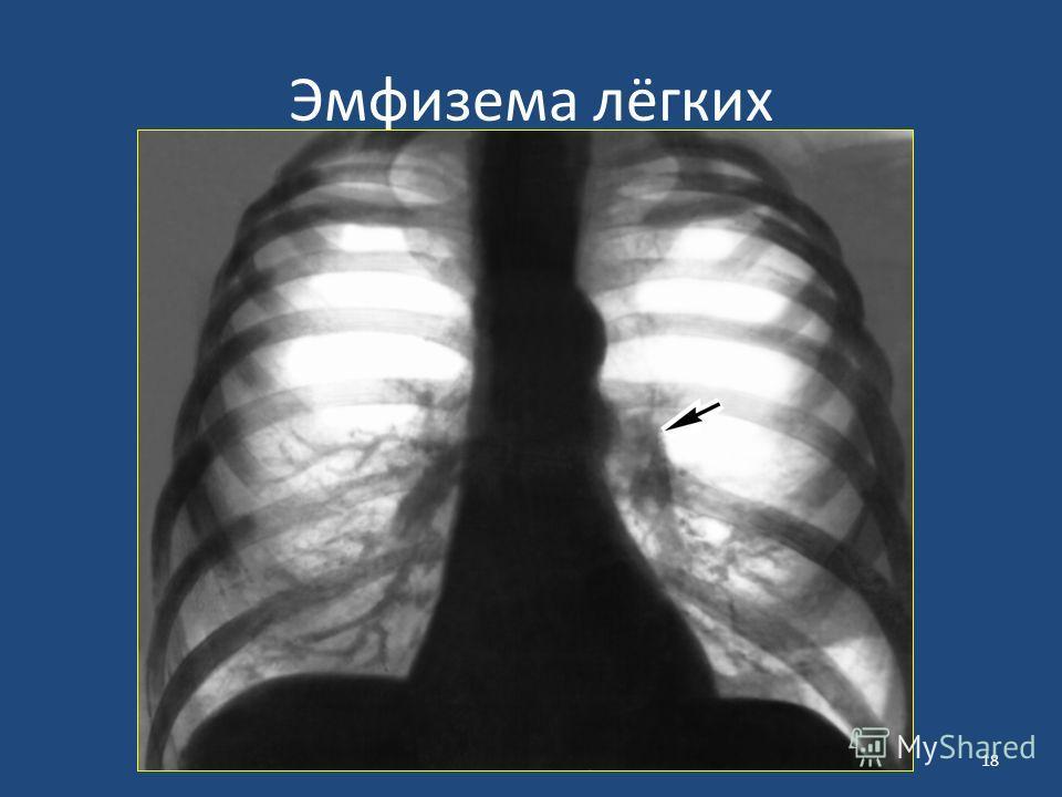 Эмфизема лёгких 18